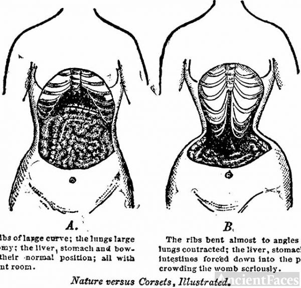Nature versus corsets illustrated