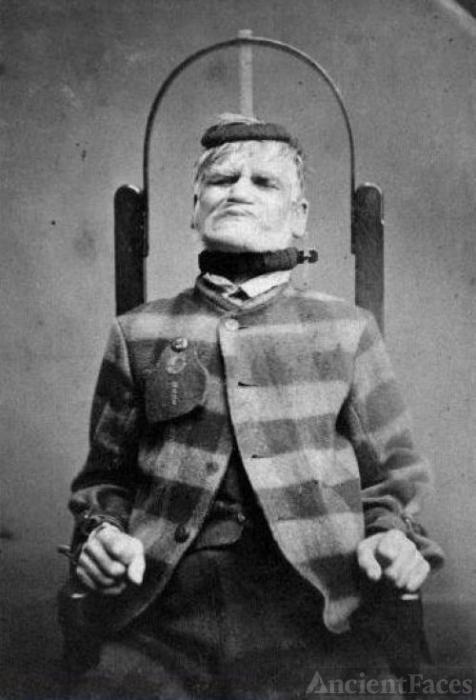 West Riding Lunatic Asylum Patient