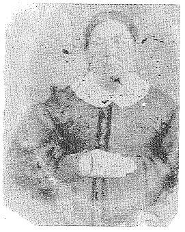 Emily Sudduth Conn, daughter of Henry W. and Sally Golden Sudduth